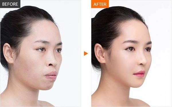 Hình ảnh After/Before (trước/Sau)